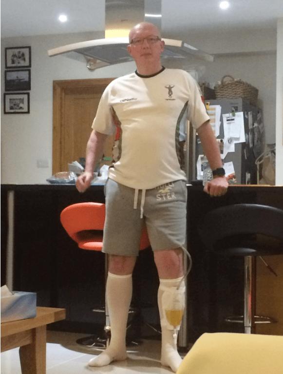 Jeff Addison using a catheter