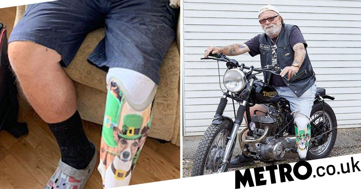 Man heartbroken by dog's death gets its face printed on prosthetic leg