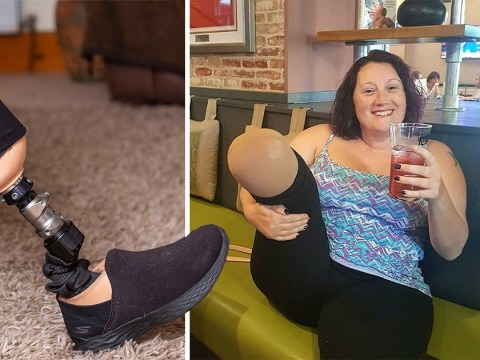 Woman's foot amputated after she dropped bottle of perfume on it