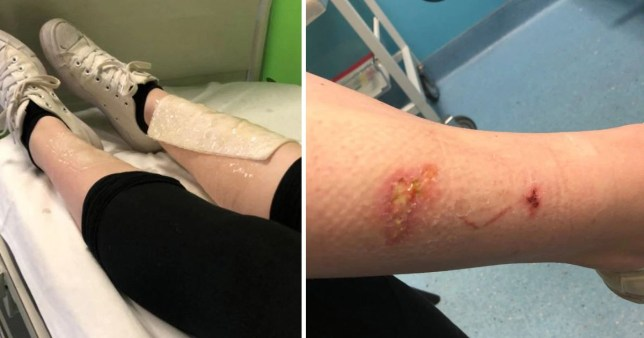 Warning to be careful ordering beauty products online after nail glue burned through girl's pyjamas