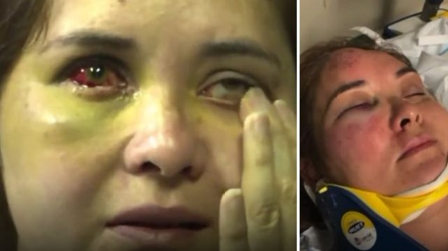 Beronica Ruiz was badly beaten and had her eyeball socket fractured by her 12 year-old son's 13 year-old bully