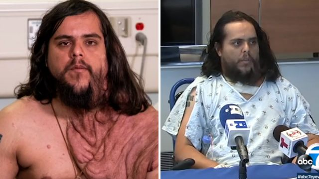 Enrique Gavan graphic before and after a medicine that saw 6 pounds of skin tumors cut from his physique