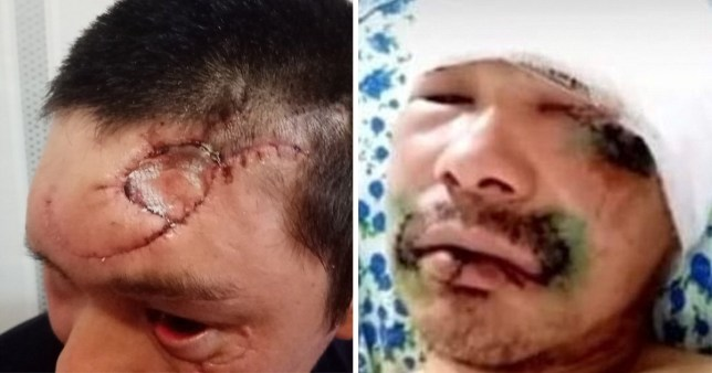 Nikolay Irgit, 35, says he was convinced he was going to die after a bear mauled him (Picture: The Siberian Times)