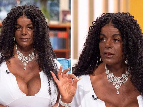 Woman who injects herself to become black is now getting the world's biggest breast implants