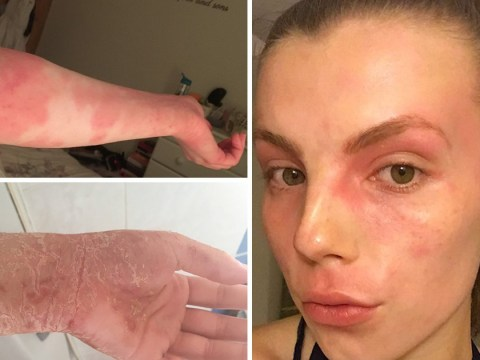 Woman's eczema was so severe it was too painful to hold her boyfriend's hand