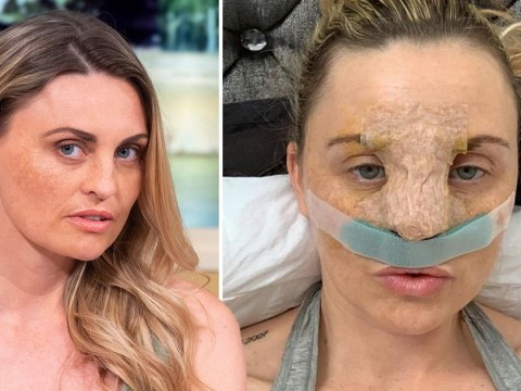 Woman who conned NHS out of a nose job is 'forced to move home'