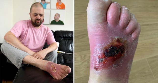 Dad in diabetes warning as he faces losing his foot over a spider bite