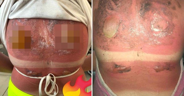 Two images of severe sunburn, one with pixelation on