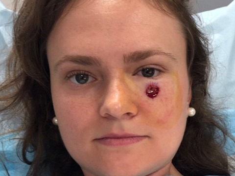 Spot under woman's eye turns out to be skin cancer