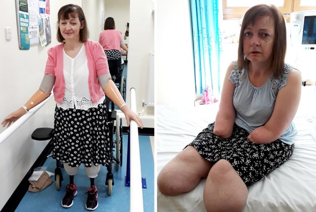 Kathleen Maher, after having her limbs amputated. A woman has told she collapsed at home and woke from a coma to find her legs and arms had been removed. See SWNS story SWTPamputee. Kathleen Maher, 46, was caring for her now late mum when she suddenly passed out and was rushed to A&E by paramedics in February 2018. Medics discovered she had multiple organ failure and sepsis due to a string of infections, and she was put into a month-long induced coma. She woke to find the veins in her arms and legs had collapsed, and she developed necrosis - her arms and legs turned black and died. In a series of ops, surgeons removed both her legs below the knee, and both arms above the elbow. The procedures saved Kathleen?s life - but left her totally limbless, almost mute, incredibly weak and extremely poorly. Brave Kathleen has regained some of her former strength and now relies on prosthetic split hook arms, and stump legs.