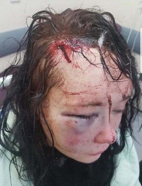 Megan McPartlin beaten so badly by boyfriend it left her permanently brain damaged