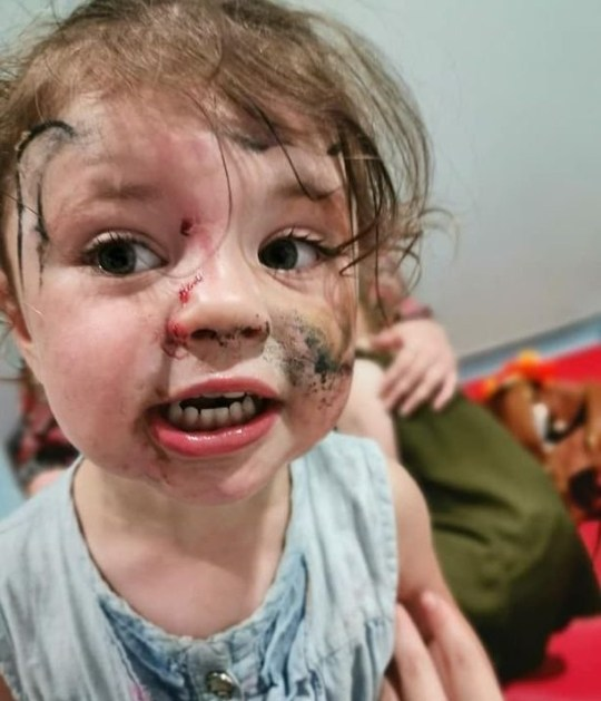 WESSEX NEWS AGENCY Jim Hardy email news@britishnews.co.uk mobile 07501 221880 A two-year-old girl on a family day out was millimetres from being blinded for life when a she stroked a dog and it tried to bite her face off. Onlookers shouted in horror as blood streamed from deep wounds on little Isla Williams' cheek and nose. And she almost lost the sight in her right eye - the dog's savage attack left a bite mark an inch away. Isla's family took this heart-breaking pic of her in hospital