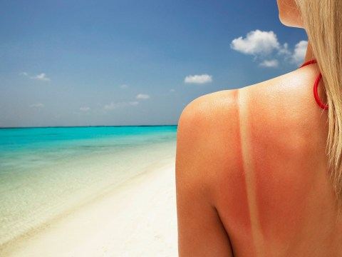 Cheap flights linked to massive rise in skin cancer rates