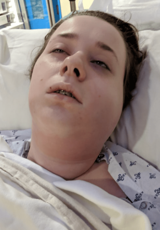 Baker, 20, almost died of sepsis after dentist took her