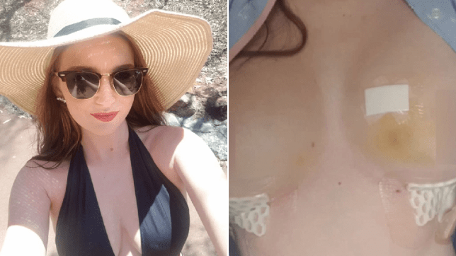 Joanna pictured in a bikini and then after operation. Her  grandmother and mum both had breast cancer
