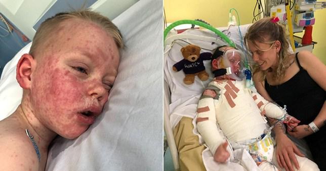 Boy with rare disease