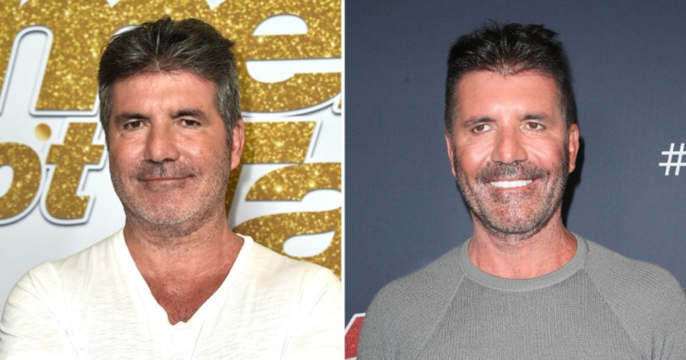 Simon Cowell's changing face