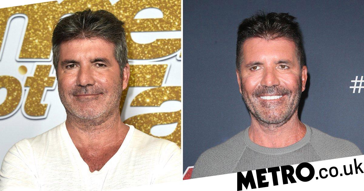 Simon Cowell Face Explained From Surgery Rumours To Vegan Diet Metro News