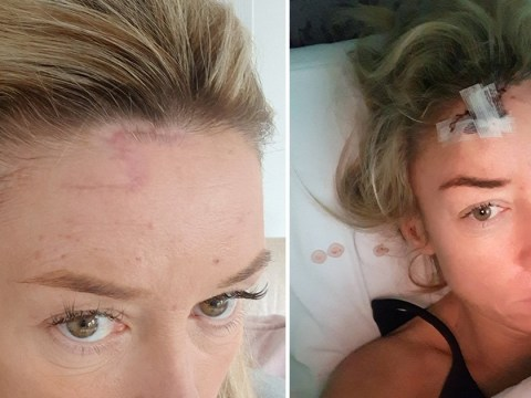 Sunbed addict left with huge scar on her head from cancer