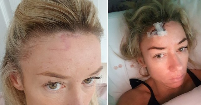 Erica Brook left with cancer scar after 25 years on the sunbeds