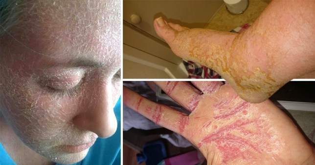 Painful eczema leaves woman unable to wear a bra or underwear after coming off steroid creams