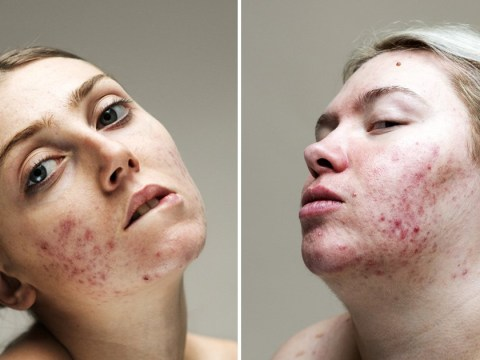 Photo series helps women with acne break down the stigma of living with a skin condition