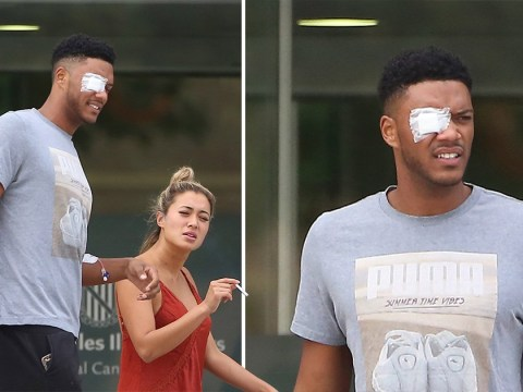 Love Island's Theo Campbell emerges outside hospital with IV still in arm after splitting eyeball in half