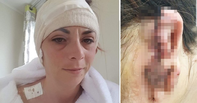 Steff John who had her ear ripped off by a rottweiler while on a family holiday to a caravan park in Brean