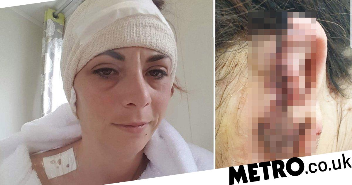 Woman's ear ripped off by rottweiler she bent down to stroke