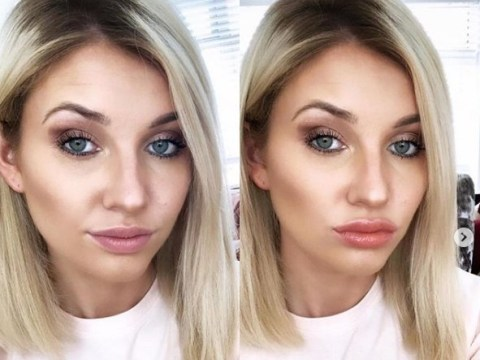Love Island's Amy Hart hits back at claims she has had lip fillers: 'I definitely don't'