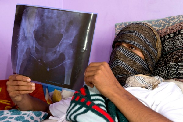 A Kashmiri boy, who was injured in a protest last week, holds up an X-Ray showing pellet injuries in his leg, as he recovers at his home in Srinagar, Indian controlled Kashmir, Saturday, Aug. 17, 2019. Authorities began restoring landline phone services on Saturday after a nearly two-week security crackdown and news blackout following a decision to downgrade the majority-Muslim region's autonomy. (AP Photo/Dar Yasin)