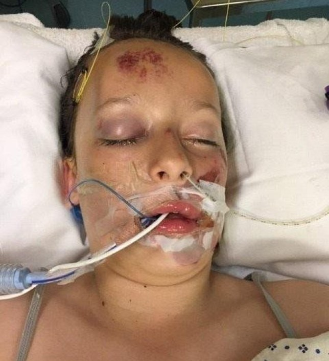 Poppy Jackson, 12, was left with a fractured skull after being hit by a car
