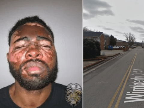 Horrific photo shows 'burglar' disfigured by homeowner after she poured hot grease on him