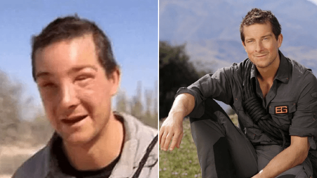 Bear Grylls bee sting reaction
