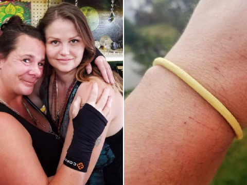 Woman says that wearing a hair tie on her wrist left her with permanent nerve damage