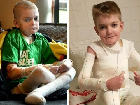Mum who asked people to send birthday cards to son with skin condition says he has received 3,000 cards so far