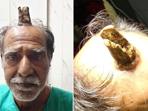 Four-inch 'devil horn' growth had to be removed from a man's head