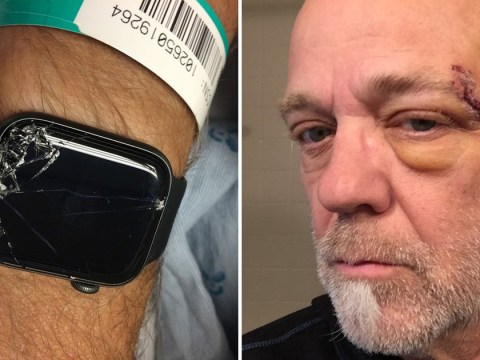 Cyclist left unconscious in the woods saved by his Apple Watch