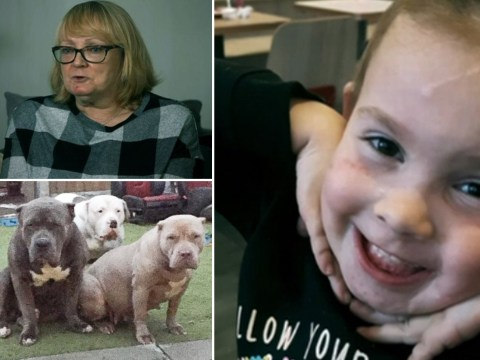 Aunt watched in horror as five dogs mauled niece like she was 'piece of meat'