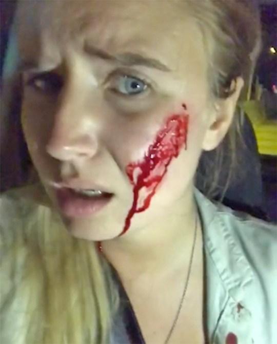 Vegan activist Mia gets shot at after saving rabbit
