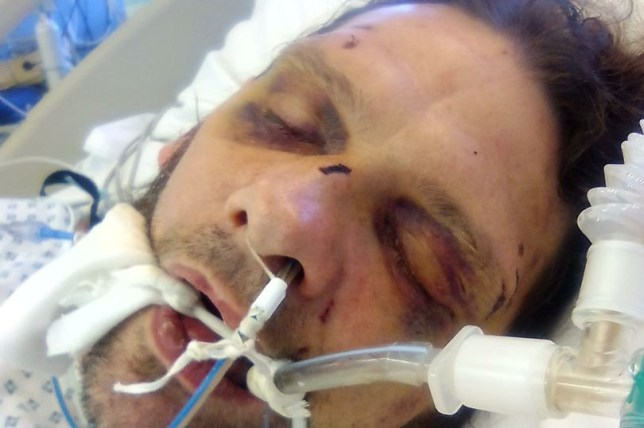Wayne Pepper was placed in an induced coma after Jonathan Shutler launched the attack