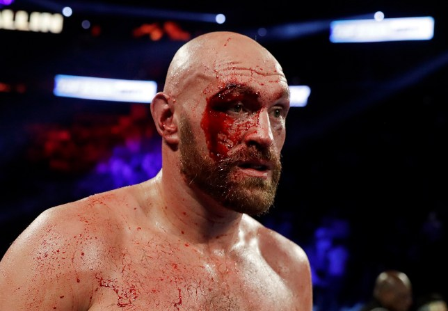 Tyson Fury, of England, displays a cut over his right eye following a heavyweight boxing match against Otto Wallin, of Sweden, Saturday, Sept. 14, 2019, in Las Vegas. Fury won by unanimous decision. (AP Photo/Isaac Brekken)