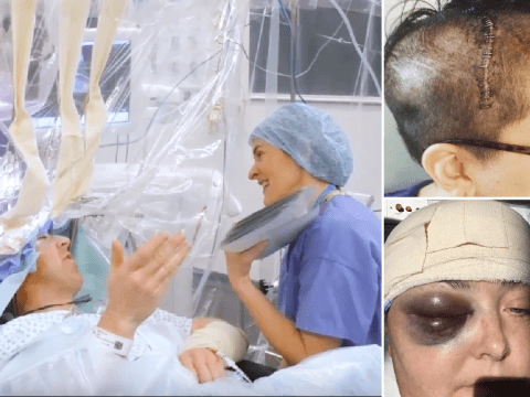 What it's like to stay awake during brain surgery