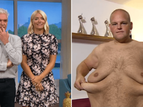 This Morning's Holly Willoughby and Phillip Schofiled pledge donation for man's £15k loose skin surgery