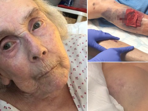 Daughter reveals injuries gran suffered at care home facing abuse allegations
