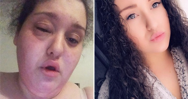 Picture of Jade Davies, from Garston, Liverpool. after suffering an allergic reaction from a wrap containing tomato in McDonalds next to a picture of her without a swollen face