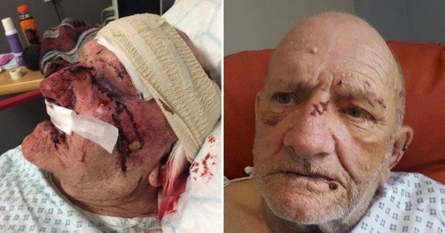 Two pictures of John Clowes who was attacked with a hammer in bed in Clayton, Newcastle-under-Lyme, Staffordshire