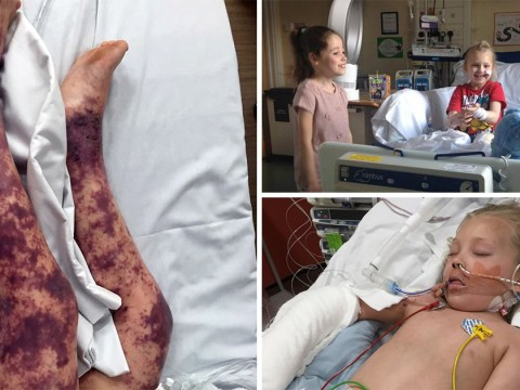 Girl, 7, has legs amputated after doctors mistake meningitis for tummy bug