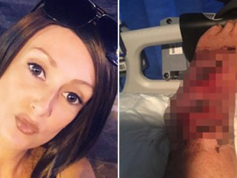 Woman's foot starts to rot away after bug bite in Benidorm