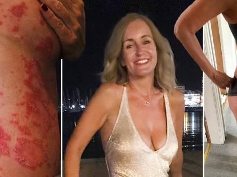 Woman says a vegan diet has cured her severe psoriasis